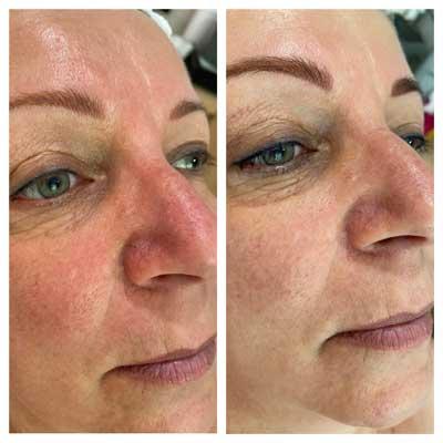 Carbook Peeling Zugló Kozmetika